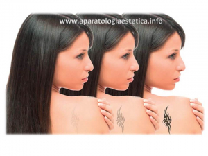eliminar tatuajes con láser neodimio